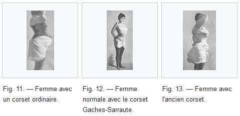corset modelator in vechime