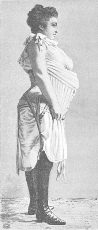femeie obeza cu corset